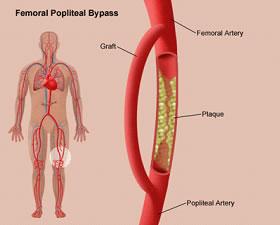 PeripheralVascularDiseaseFemoralPoplitealByPass